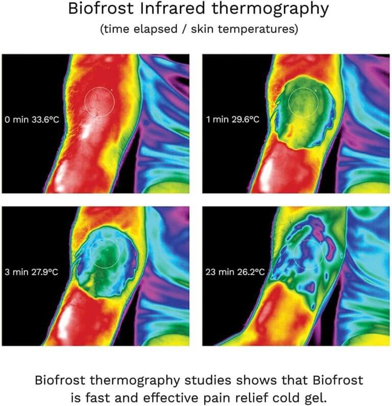 biofrost effective pain relief infrared thermography pictures